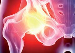 Metal-on-Metal hip implants home
