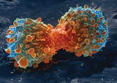 Cancer rates and mortality, types and causes home