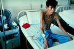 HIV-TB patient in Thailand.